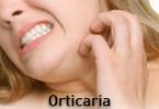 Orticaria ed Angioedema