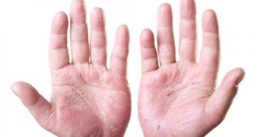 dermatite delle mani