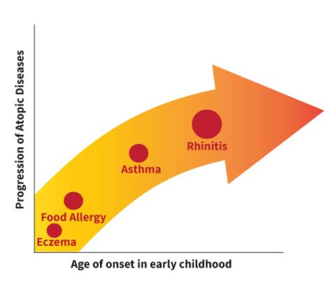 allergie in aumento